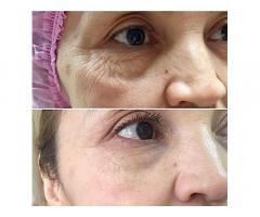 инъекционная косметология, уходовые процедуры